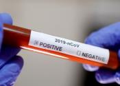 Çin'den flaş 'Koronavirüs' açıklaması: 'Yüzde 99 etkili olacak...'