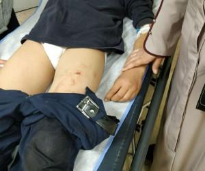 Gaziantep'teki okulda bıçaklama olayı