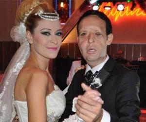 Türkiye'nin 5'inci yüz nakli Recep Sert boşanıyor