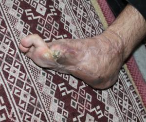 Savaşta topuğunu kaybeden gence yeni topuk yapıldı