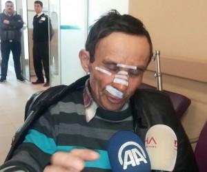 """Çorum'daki kazadan yaralı kurtulan yolcu: """"Camdan atlayarak kurtulduk"""""""