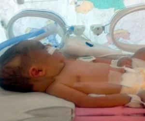 Kafatası çatlayan 6 günlük bebek, yaşam savaşı veriyor